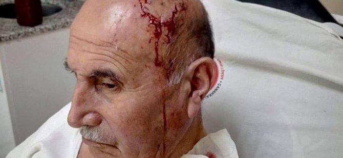 71 yaşındaki adam Hastanede kürtçe konuştuğu için  ırkçı saldırıya uğradı