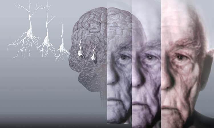 Alzheimer'dan korunma yöntemleri