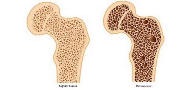 Osteoporoza yol açan en önemli faktör fiziksel aktivitenin az olmasidir