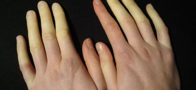 Soğuk havaların sinsi hastalığı: Raynaud Fenomeni!