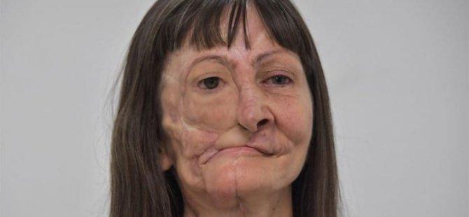 Gözünü ve çenesinin bir kısmını kaybeden kanser hastası için cep telefonuyla çekilen karelerle 'yeni yüz' tasarlandı