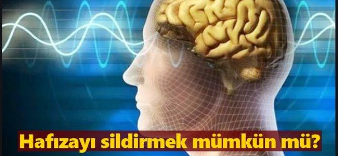 TMS nedir? TMS ile hafızayı sildirmek mümkün mü?