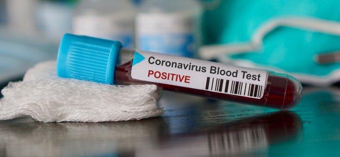 Güney Kıbrıs'ta 8 Yeni Korona Virüsü Vakası… Sayı 75'e Yükseldi