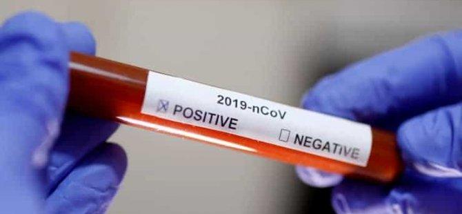 24 aile hekimi ile hemşirenin koronavirüs testi pozitif