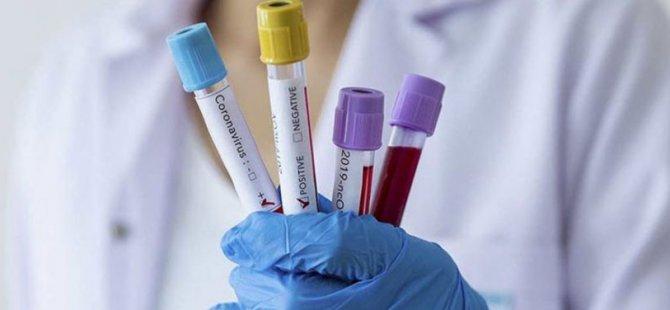 Güney Kıbrıs'ta Koronavirüs vakalarında artış yaşanıyor