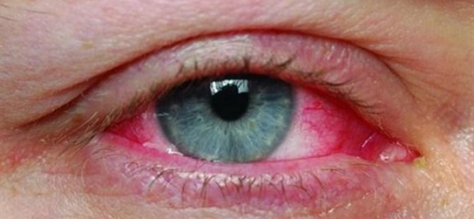 """""""Koronavirüs Gözlerde Konjonktivit Yaparak Bulaşabilir"""" Uyarısı"""