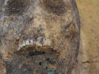 Polonya'da ağzında sikke bulunan onlarca çocuk iskeleti ortaya çıkarıldı