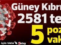 Güney Kıbrıs'ta bugün 2581 test sonucunda 5 yeni koronavirüs vakası saptandı