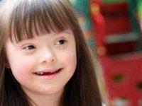 Her Halleri 1 Farkla Bizim Gibi Olan İnsanlar: Down Sendromu