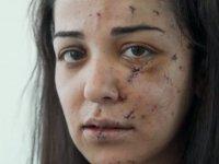 Plastik cerrah ücretsiz ameliyatlarla Beyrut patlamasının izlerini siliyor