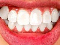 Diş Sıkmak Dişleri Olumsuz Etkiliyor !