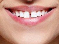Diş Eksikliği Birçok Hastalığa Davetiye Çıkarıyor !