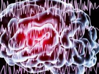 Epilepsi nöbeti önceden bilinecek