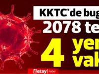 KKTC'de bugün 2078 test, 4 yeni vaka!