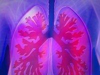 Akciğer Kanserinde Erken Teşhis Başarı Şansını Artırıyor
