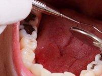 Diş Çürüklerinden Kurtulmak İçin 10 Adım