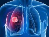 Akciğer Kanseri Cerrahisinde Tek Ve Küçük Kesiden Ameliyat Yapılıyor