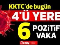 KKTC'de bugün 4'ü yerel 6 pozitif vaka