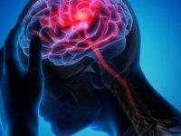 Koronavirüs nasıl beyin sisine yol açıyor?