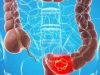 Kalın Bağırsak Kanseri Belirtilerini Hemoroid İle Karıştırmayın