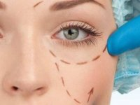 Badem Göz Estetiği Ameliyatsız Nasıl Uygulanıyor?