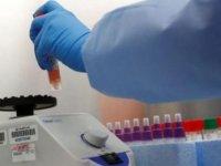 İskele'de bugün itibari ile koronavirüs tespiti hızlı test (antijen) kiti ile yapılacak