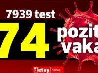 Toplam 7939 test yapıldı, 70'i yerel 74 pozitif vaka