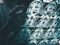 """Dünyaca ünlü Türk cerrah Covid-19'un """"Hızlanmış Alzheimer"""" etkisine karşı tedavi geliştirecek"""