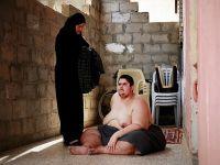 Filistinli obez genç yardım bekliyor