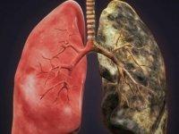 Akciğer sertleşmesinde erken tanı önemli