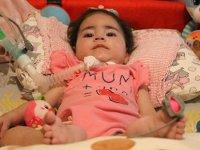 Asya bebek için 'kas kaybı' tedavisine başlandı