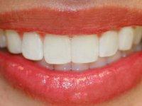 Sağlıklı dişlerin 5 püf noktası