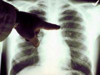 Müjde: Akciğer kanserine erken teşhis