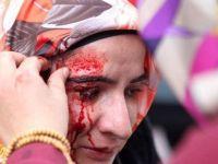 Zaman Gazetesi'ne desteğe gidenlere polis saldırdı