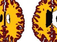 Aşırı kilo 'beyni yaşlandırıyor'