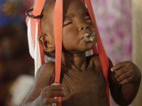 UNICEF: 75 binin üzerinde çocuk açlıktan ölebilir