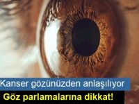 Kanser gözünüzden anlaşılıyor… Göz parlamalarına dikkat!