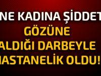 Girne'de kadına şiddet!
