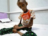 """BM'den """"Yemen'deki ablukayı kaldırın"""" çağrısı"""