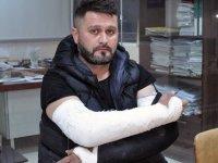İki polisin vatandaşın iki kolunu birden kırdığı iddia ediliyor