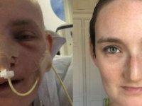 'Yüz rekonstrüksiyon ameliyatı hayatımı değiştirdi'