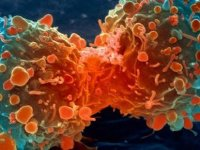 Kanser gelişim riskini azaltan gıdalar açıklandı