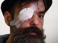 Sarı Yelekliler lideri Jerome Rodrigues 'plastik mermiyle' gözünden vuruldu