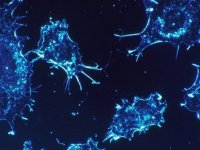 İsrailli bir grup bilim insanı, tüm kanser türlerinde kökten yok eden bir tedavi bulduklarını açıkladı