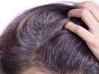 Beyaz Saçlar Koparılırsa Yerine Daha Fazla Beyaz Saç Çıkar Mı?