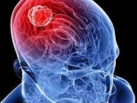 Dikkat! Beyin tümörü habercisi olabilir
