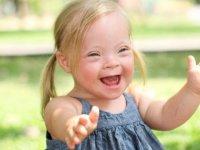 Down Sendromu nedir, neden olur, tedavisi var mı? Down Sendromu kromozom farkı nasıl anlaşılır?.