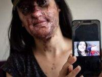 Eski erkek arkadaşının asit saldırısına uğrayan Berfin Özek'in ilk ameliyatı 'iyi geçti'