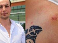 Tartıştığı kişi tarafından ısırılınca kuduz aşısı yapıldı!