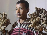 Bangladeşli 'ağaç adam' ellerinin kesilmesini istedi